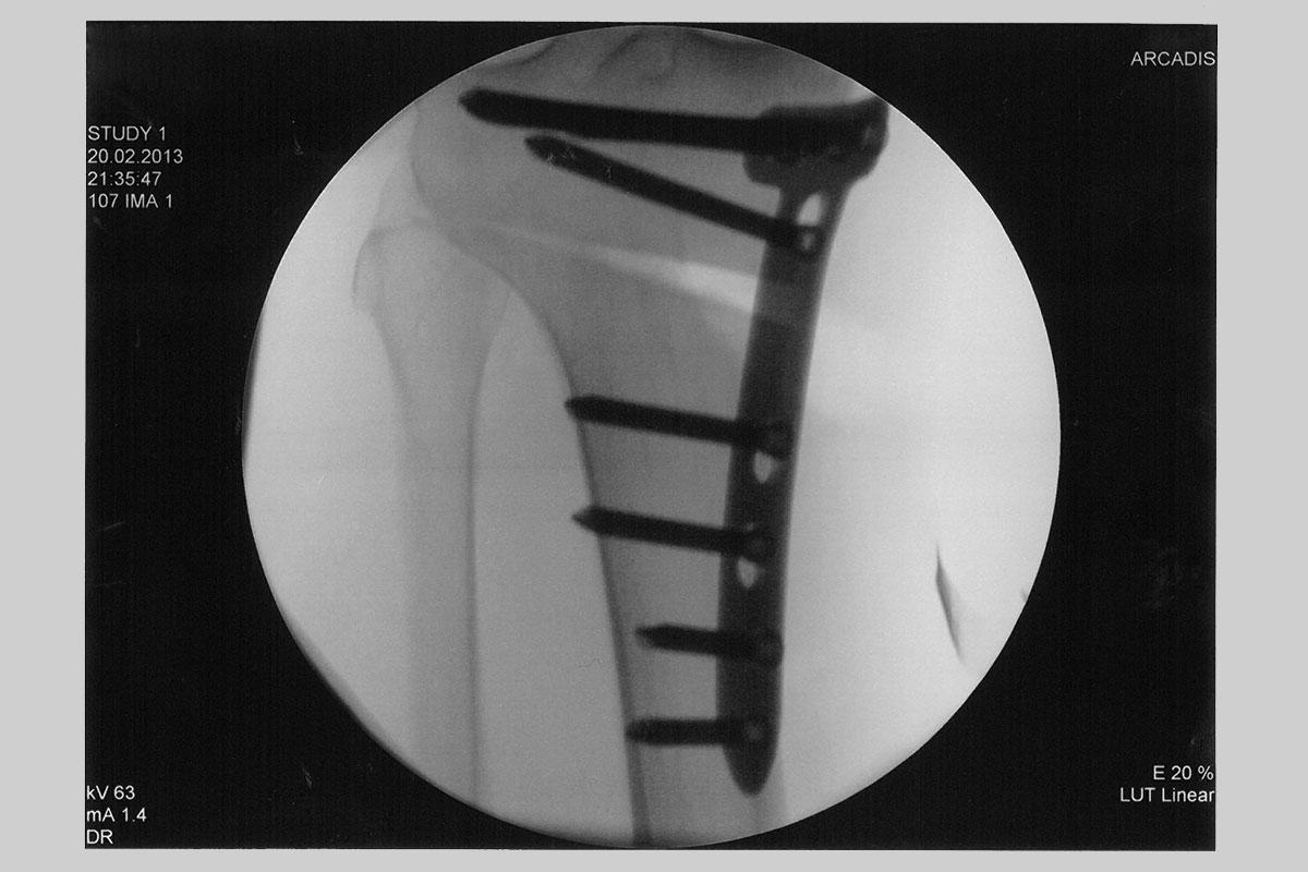 Umstellungsosteotomie mit Platte - Röntgenaufname