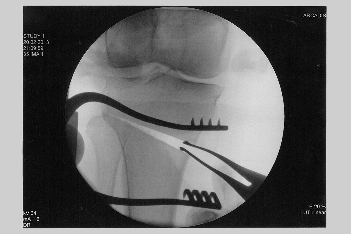 Umstellungsosteotomie Röntgenaufnahme