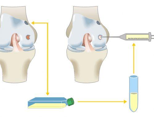 Wie funktioniert eine Knorpeltransplantation?