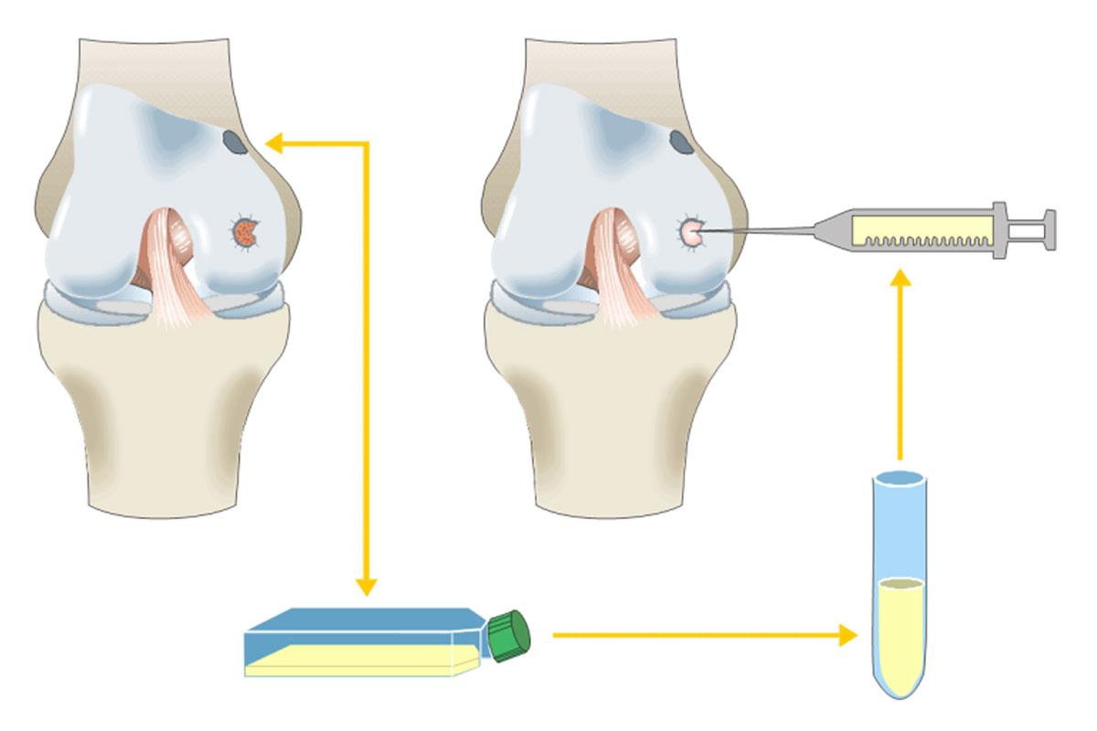 Grafik zur Knorpeltransplantation im Knorpelzentrum Wien